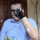 Mirek – dłonie Bebionic, czyli szansa na lepsze życie…